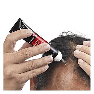 DERCOS MEN CURE INTENSIVE première chute de cheveux 36 ml